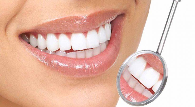 جرمگیری دندانها در لبخند برتر