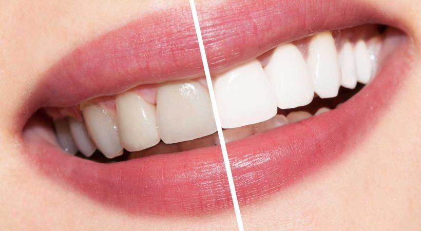 سفیدکردن دندانها در لبخندبرتر